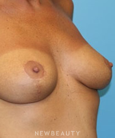 dr-christine-hamori-breast-lift-b