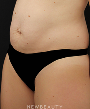 dr-daniel-maman-liposuction-b