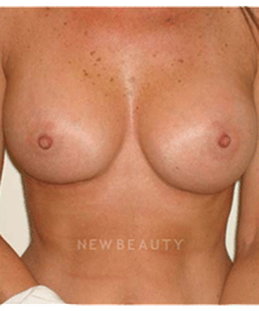 dr-michael-horn-silicone-breast-implants-b