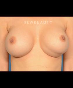 dr-bryan-gawley-breast-augmentation-b