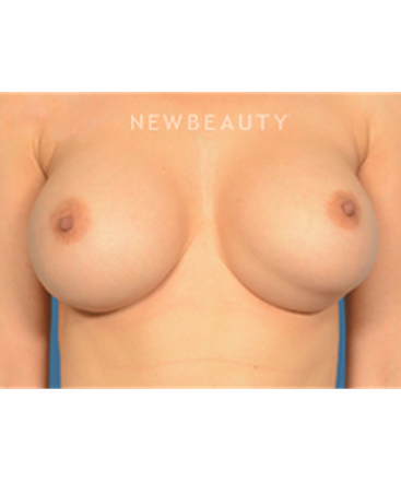 dr-bryan-gawley-breast-augmentation-b
