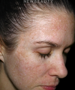 dr-rachel-n-pritzker-melasma-treatment-b