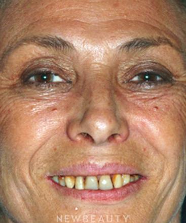 dr-jason-kasarsky-bonding-crowns-teeth-whitening-b
