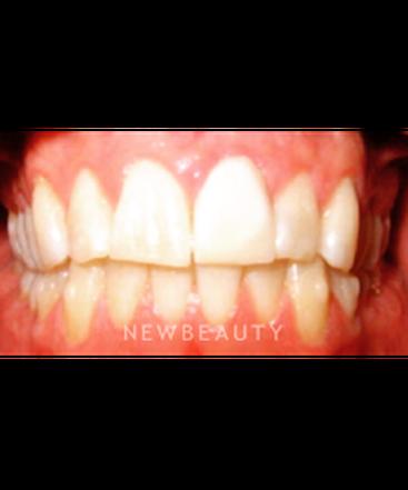 dr-pia-lieb-smile-makeover-b
