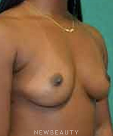 dr-aviva-preminger-breast-augmentation-b