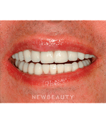 dr-niloufer-hamsayeh-veneers-and-splint-therapy-b