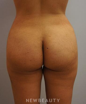 dr-kevin-tehrani-brazilian-butt-lift-b
