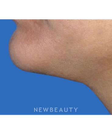 dr-stephen-greenberg-neck-lift-b