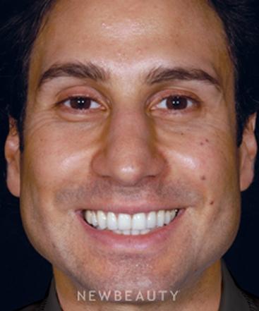 dr-craig-a-foster-improved-facial-balance-b