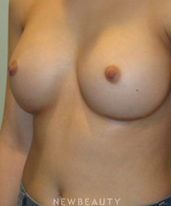 dr-michael-horn-breast-augmentation-b