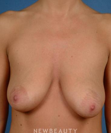 dr-bradley-calobrace-breast-augmentation-breast-lift-b