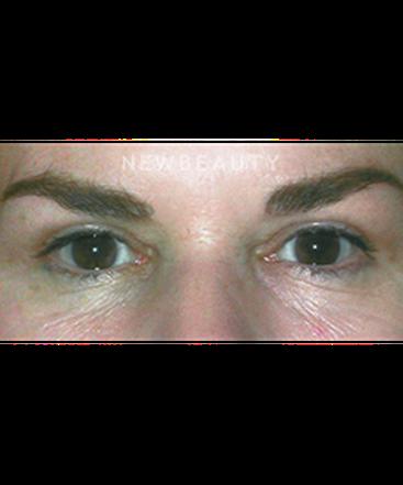 dr-stafford-broumand-upper-blepharoplasty-b