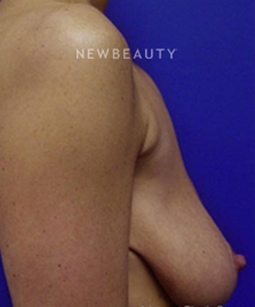 dr-kevin-tehrani-natural-lift-with-implants-b