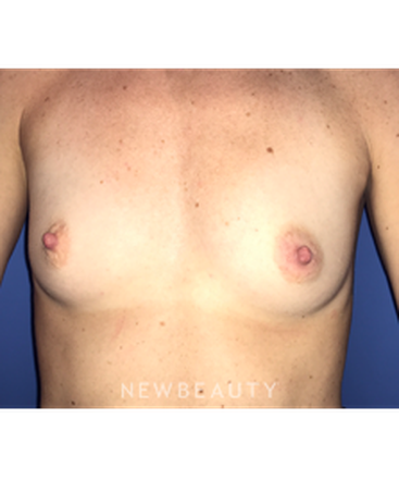 dr-stephen-greenberg-breast-augmentation-b