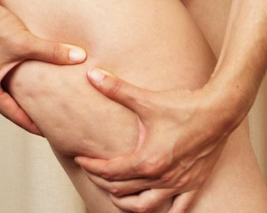 5 Most Popular Myths About Liposuction Busted