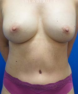 dr-niki-christopoulos-breast-lift-b