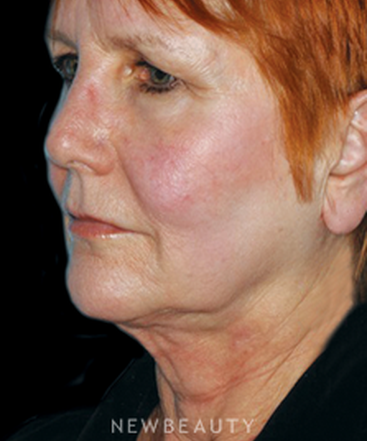 dr-yadro-ducic-necklift-facelift-browlift-b