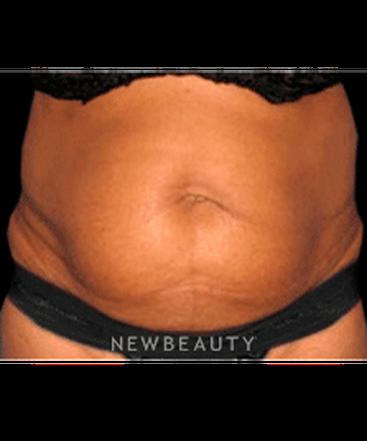 dr-sanjay-grover-tummy-tuck-b