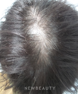 dr-marina-peredo-hair-loss-treatment-b