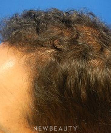 dr-alan-chen-hair-transplant-b