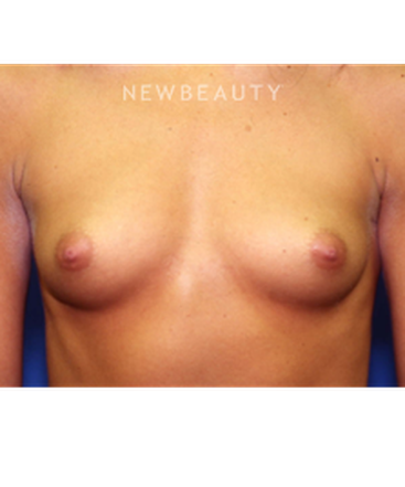 dr-michael-stefan-breast-augmentation-with-fat-transfer-b