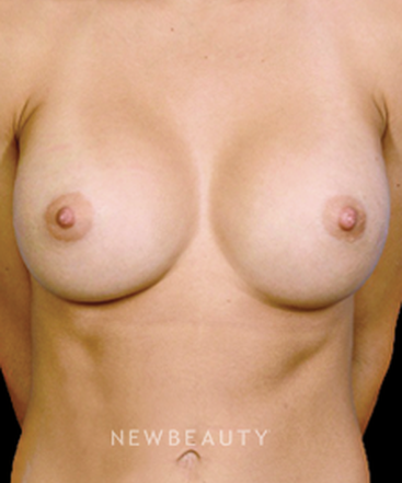 dr-william-franckle-breast-enhancement-b
