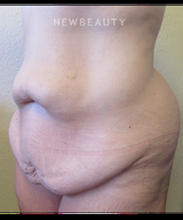 dr-jennifer-e-boll-bodylift-after-massive-weight-loss-b