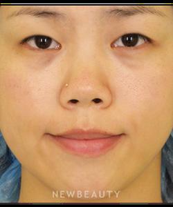 dr-goretti-ho-double-eyelid-surgery-b