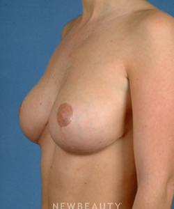 dr-bradley-calobrace-breast-augmentation-breast-lift-b