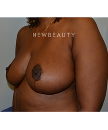 dr-b-aviva-preminger-breast-reduction-b