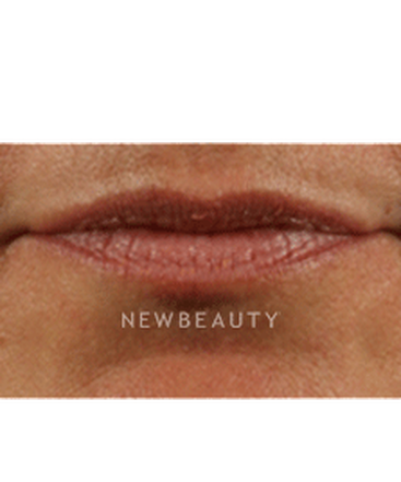 dr-marina-peredo-lip-augmentation-b