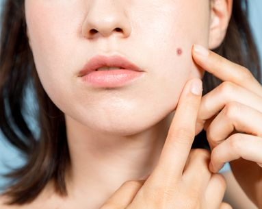 The Ultimate Guide to Adult Acne