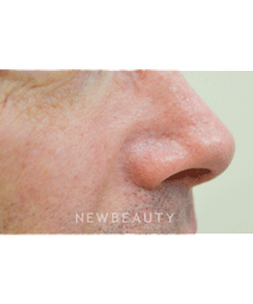 dr-julie-russak-facial-laser-treatment-b