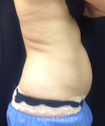dr-ingrid-warmuth-fit-and-trim-results-b