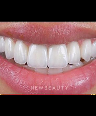 dr-husam-almunajed-smile-makeover-b