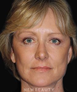 dr-brent-smith-blepharoplasty-facelift-lasers-b