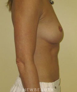 dr-beth-collins-breast-augmentation-b