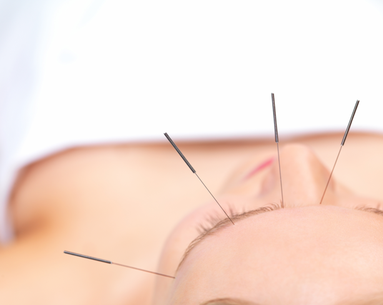 Acupuncture Myths Debunked