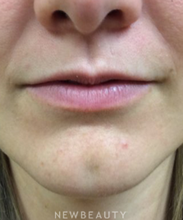 dr-lesley-loss-lip-filler-b