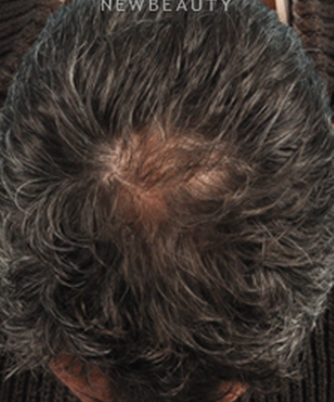 dr-bradley-bengtson-hair-loss-treatment-b