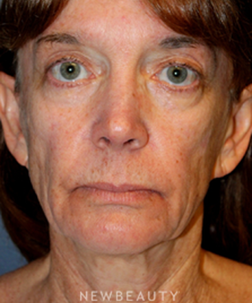 dr-brent-j-smith-facelift-with-fat-transfer-b