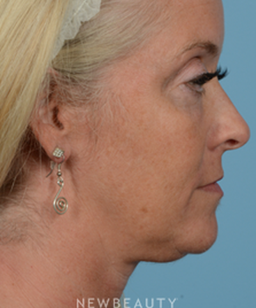 dr-jeffrey-wise-lower-facelift-b