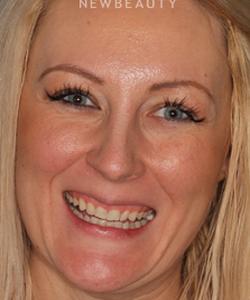 dr-sam-sadati-smile-makeover-b