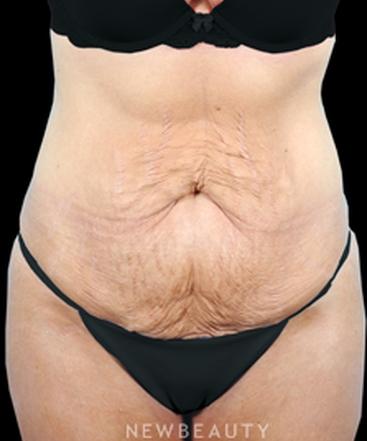 dr-bradley-bengtson-tummy-tuck-b