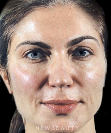 dr-marina-peredo-lip-filler-and-cheek-augmentation-b