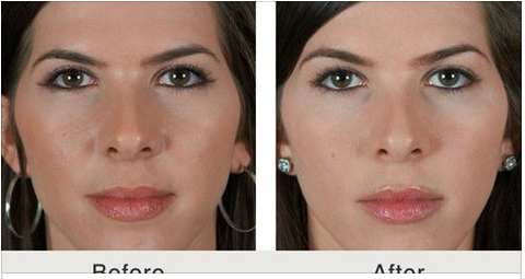The Easiest Way to Lift a Droopy Brow