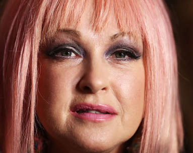 Cyndi Lauper Speaks Out About Her Ongoing Battle With This Skin Condition
