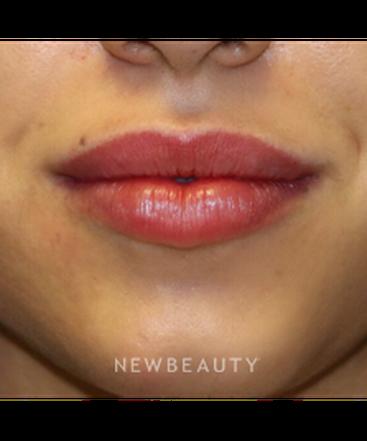 dr-shervin-naderi-lip-enhancement-b