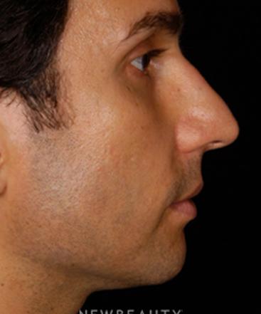 dr-craig-foster-chin-augmentation-b