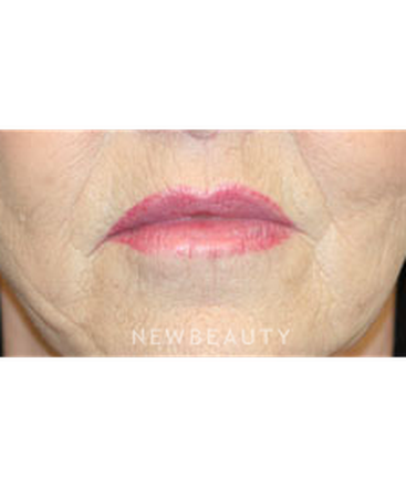 dr-christine-hamori-lip-lift-b